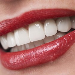 Delray Beach Dental Implants