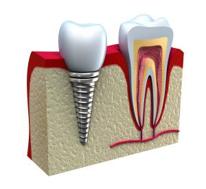 Dental Implants in Delray beach Florida